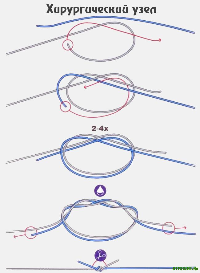 Как вяжут хирургический узел